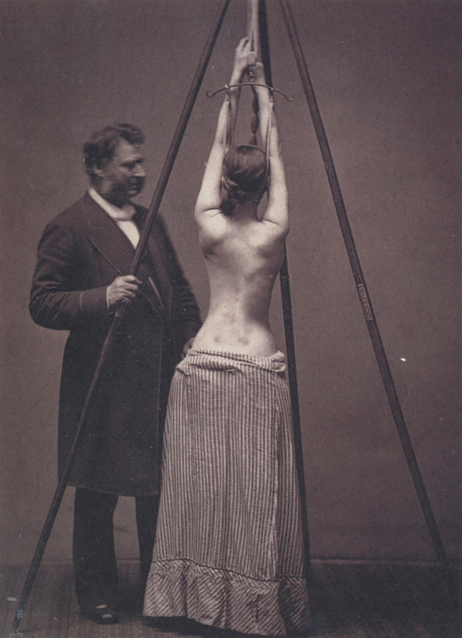 Dr. Lewis Sayre treating scoliosis, checking the curvature of the spine.