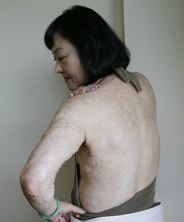 xUAVOmgdU624dcbc526ea44a3fd-3287651-In_this_Sept_25_2015_photo_Kim_Phuc_shows_burn_scars_on_her_back-a-84_1445750828268