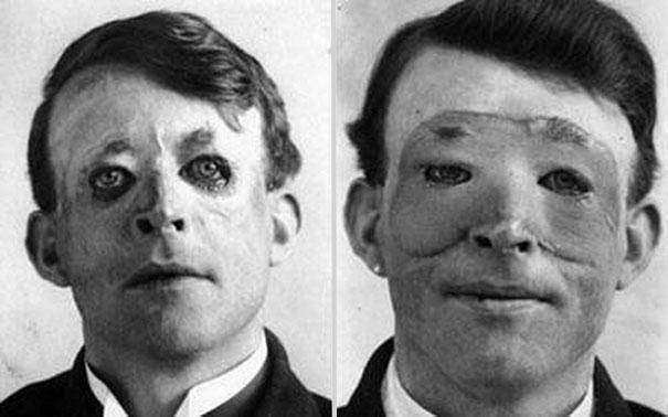 1917: Walter Yeo becomes one of the fist people in the world to receive a skin transplant and go under the knife for plastic surgery