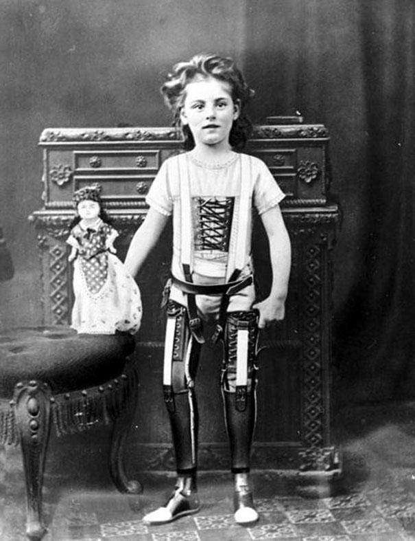 Circa 1890: A British girl poses with early versions of prosthetic limbs.