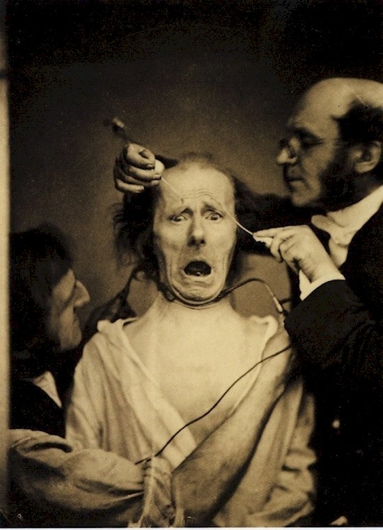 Neurologist Guillaume Duchenne studying facial expressions by using electricity on a patient.