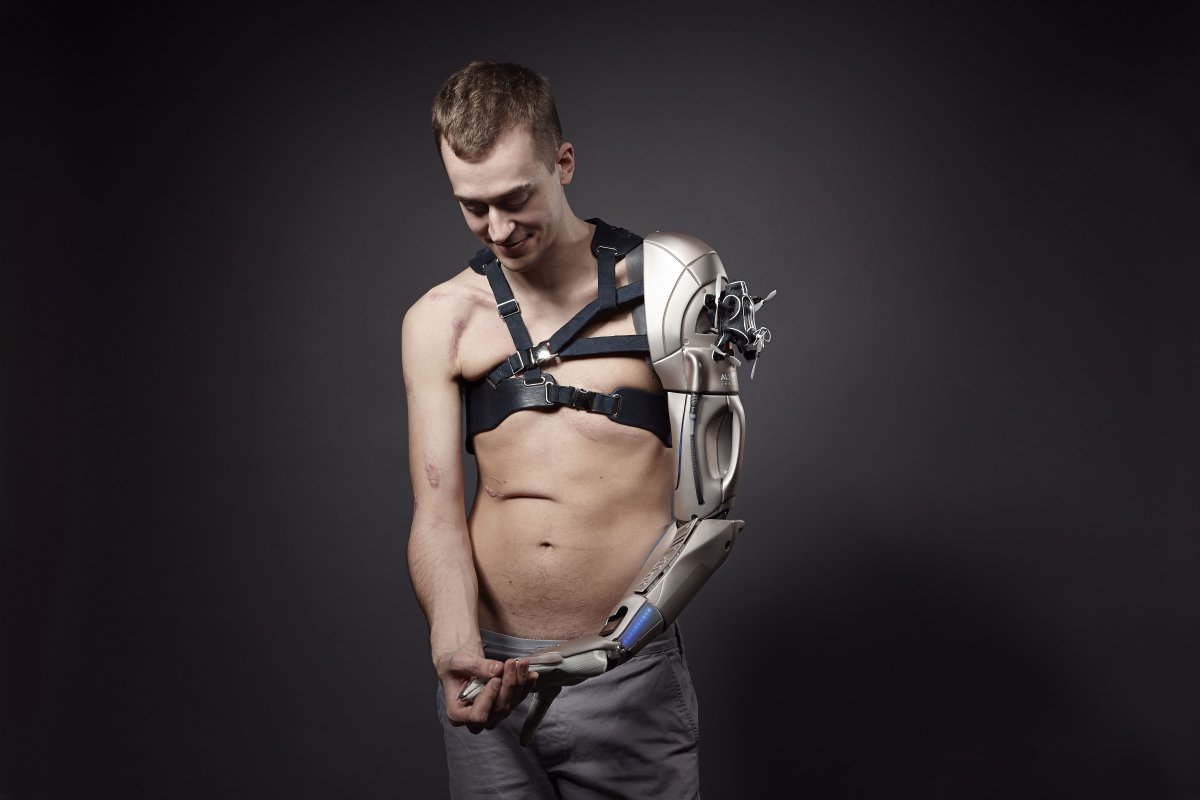 young-was-at-a-normal-prosthetics-clinic-when-he-saw-an-advertisement-looking-for-an-amputee-interested-in-a-video-game-inspired-prosthetic