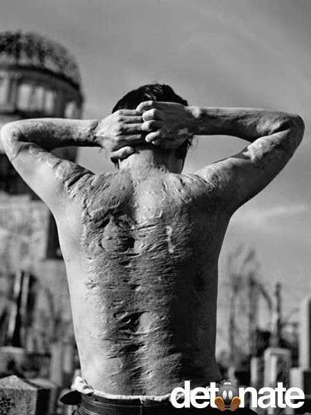 A Hiroshima A-Bomb victim shows his scars, 6 years after