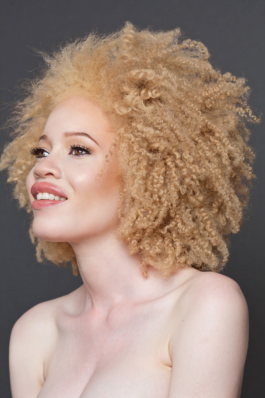 beautiful-albino-people-albinism-28-582ed6222ccf8__880