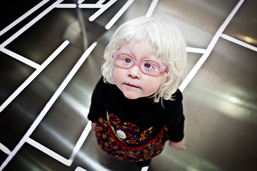 beautiful-albino-people-albinism-56-582f064116962__880